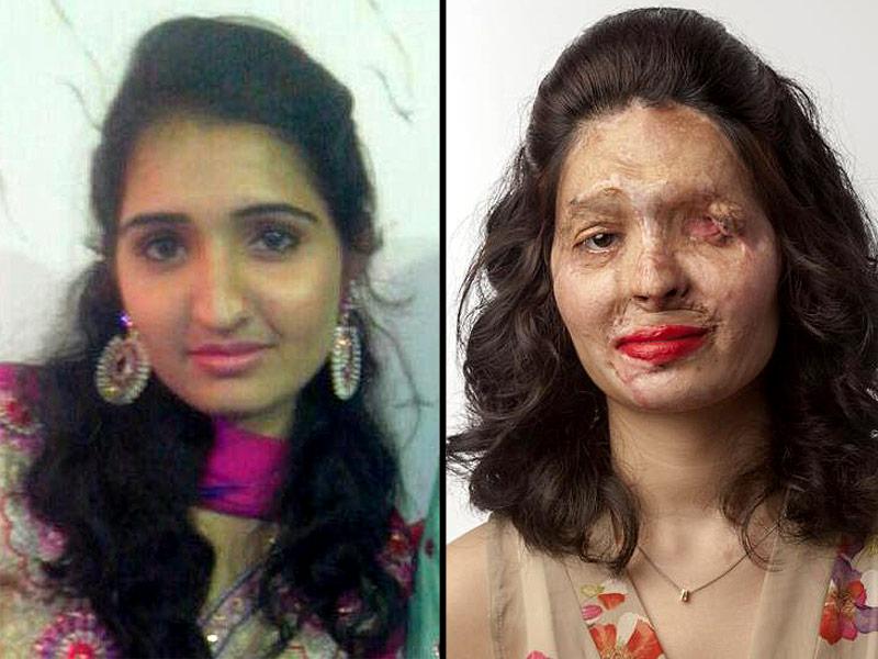 Reshma, sfregiata con l'acido, spiega alle donne come truccarsi